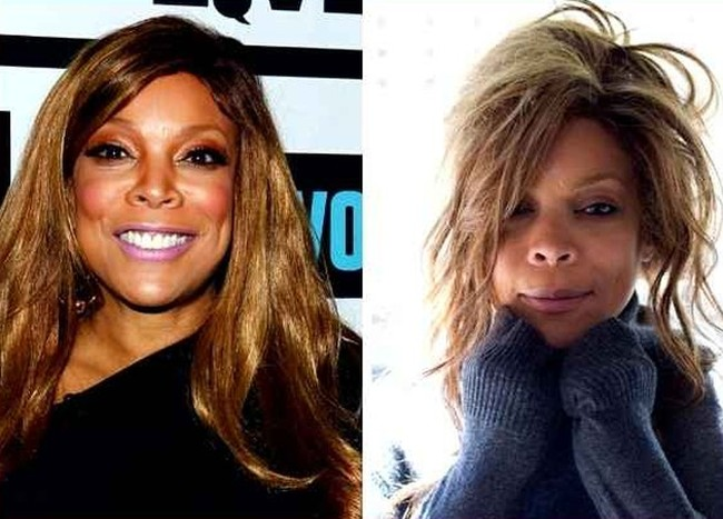 The Whole Truth About Wendy William Plastic Surgery