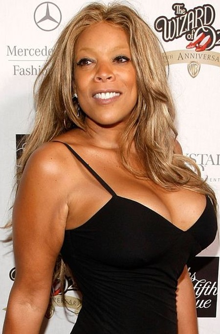 photo of black woman with breast implant jpg 422x640