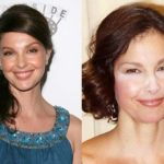 Ashley Judd After Plastic Surgery Puffy Face