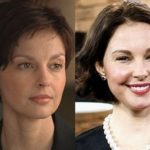 Ashley Judd Before And After Botox Injections