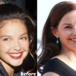 Ashley Judd Before And After Photos