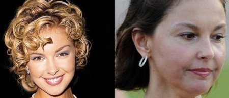 Ashley Judd's Face Changes Due To Botox Injections?