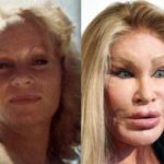 Catwoman plastic surgery before and after
