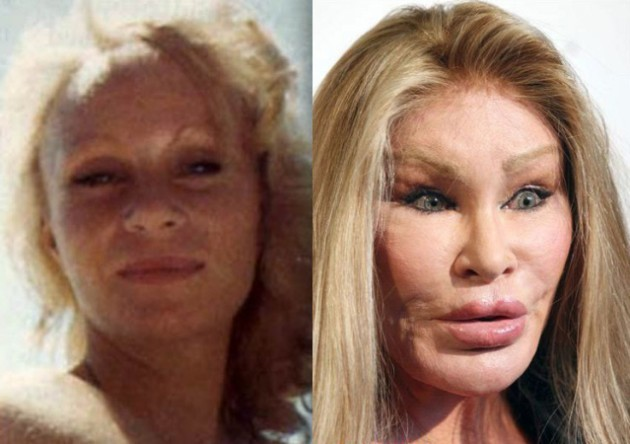 Catwoman plastic surgery before and after 630x444