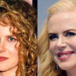 Celebrity Nicole Kidman plastic surgery mistake 150x150
