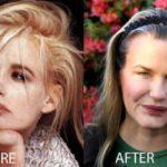 Daryl Hannah Plastic Surgery Nightmare
