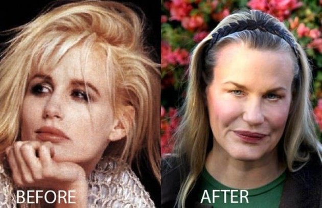 Daryl Hannah Plastic Surgery Nightmare