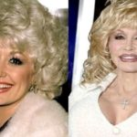 Dolly Parton was it extreme plastic surgery