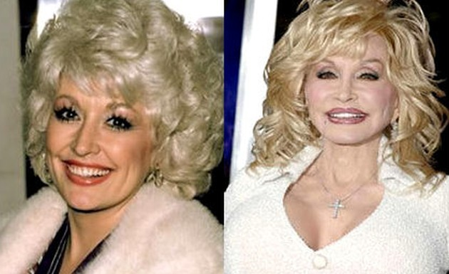 Dolly Parton was it extreme plastic surgery 630x385