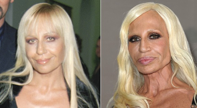 Donatella Versace plastic surgery gone bad