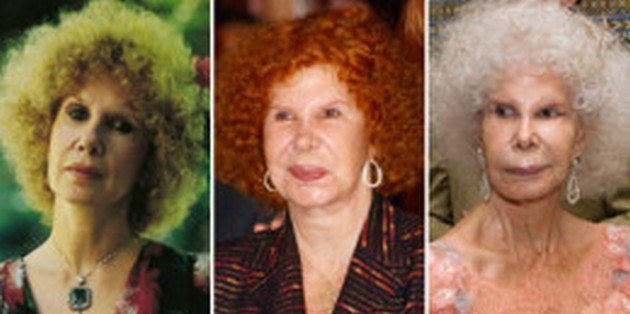 Duchess of Alba before and after surgery photos
