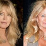 Goldie Hawn plastic surgery gone bad