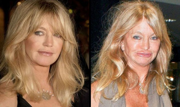 Goldie Hawn plastic surgery gone bad 630x375