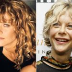 Hollywood Celebrity Meg Ryan before and after surgery photos