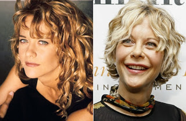 Hollywood Celebrity Meg Ryan before and after surgery photos 630x412