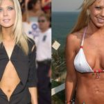 Hollywood CelebrityTara Reid Before and After Plastic Surgery 150x150