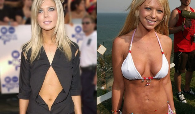 Hollywood CelebrityTara Reid Before and After Plastic Surgery 630x369