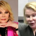 Joan Rivers worst plastic surgery pictures