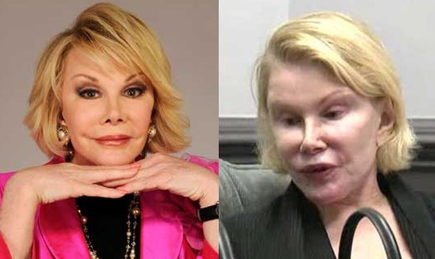 Joan Rivers worst plastic surgery pictures 630x375