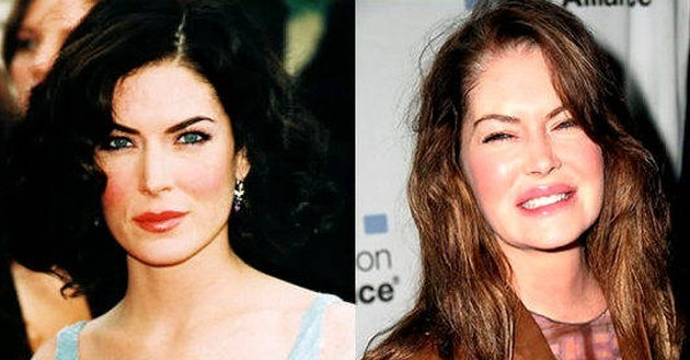 Lara Flynn Boyle Before and After Plastic Surgery 630x329