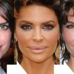Lisa Rinna before and after lip implants 150x150