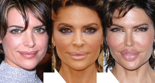 Lisa Rinna before and after lip implants