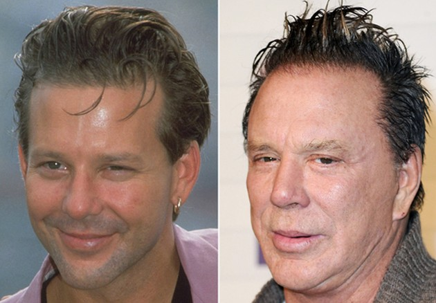 Mickey Rourke plastic surgery transformation