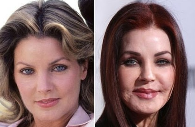 Priscilla Presley Before And After Plastic Surgery 630x410