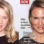 Renee Zellweger plastic surgery procedures 150x150