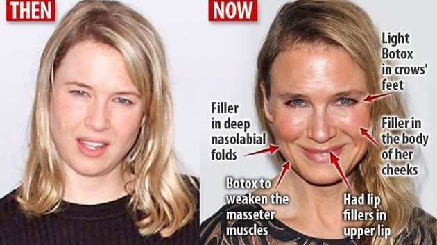 Renee Zellweger plastic surgery procedures 630x353