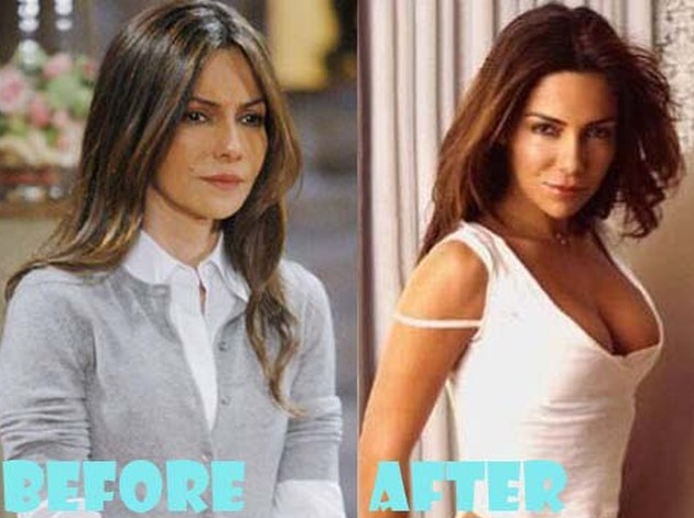 Vanessa Marcil Before And After Photos