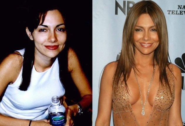 Vanessa Marcil Before And After Plastic Surgery Boob Job