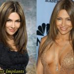 Vanessa Marcil Plastic Surgery Breast Augmentation  150x150