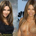 Vanessa Marcil Plastic Surgery Breast Augmentation