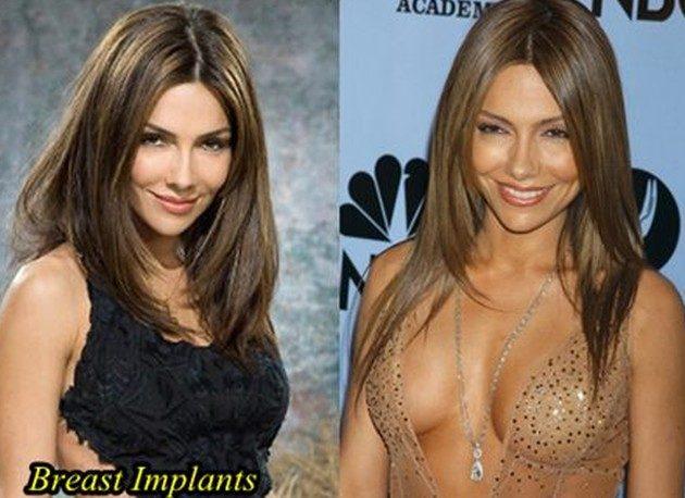 Vanessa Marcil Plastic Surgery Breast Augmentation  630x458