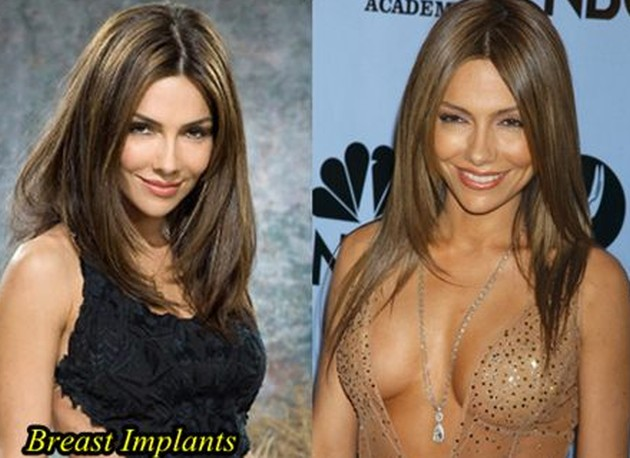 Vanessa Marcil's Successful Plastic Surgery Attempts