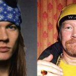 axl rose bed plastic surgery 150x150