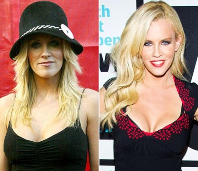 After Jenny McCarthy's Plastic Surgery Drastic Change Her Breast Size
