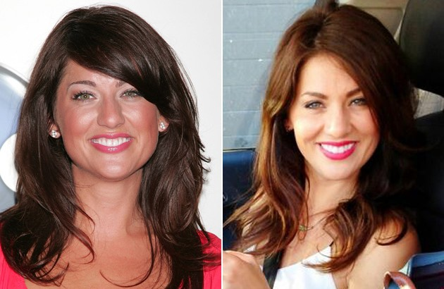 After Rhinoplasty Jillian Harris Nose Looks To Be Tightened Reshaped And Corrected