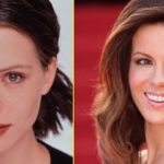 After Rhinoplasty Kate Beckinsales Nose Looks Narrower And More Elegant 150x150