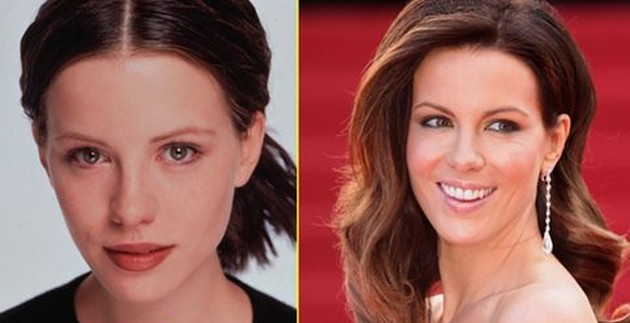 After Rhinoplasty Kate Beckinsales Nose Looks Narrower And More Elegant