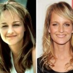 Helen Hunt Before And After Botox Treatments
