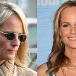 Helen Hunt Before And After Plastic Surgery 150x150