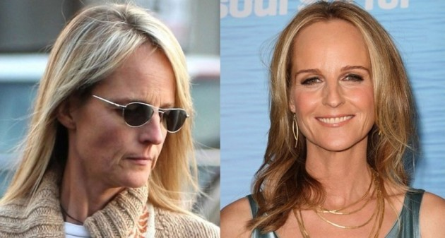 Helen Hunt Before And After Plastic Surgery 630x337