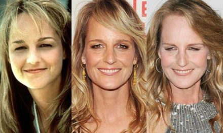 Are Speculations About Helen Hunt Plastic Surgery Correct?