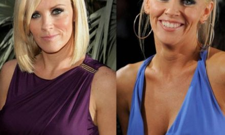 How Jenny McCarthy's Plastic Surgeries Have Transformed Her