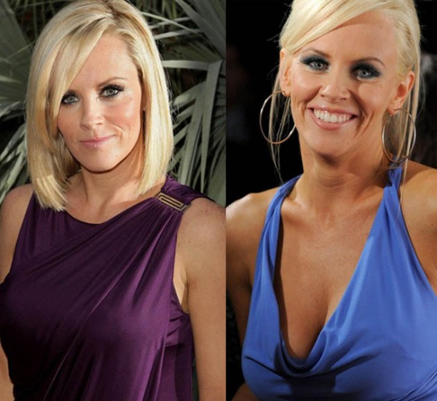 Jenny McCarthy Before And After Photos