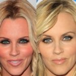 Jenny McCarthy Cosmetic Procedures 150x150