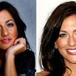 Jillian Harris Before And After Nose Job Plastic Surgery 150x150