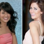 Jillian Harris Before And After Rhinoplasty